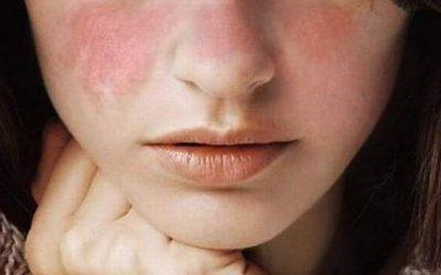 Dolores que produce el lupus