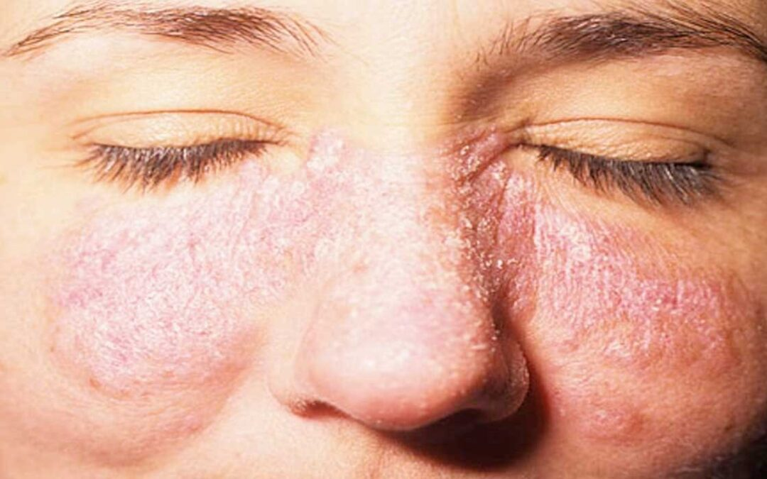 El lupus una enfermedad que se presenta más en mujeres